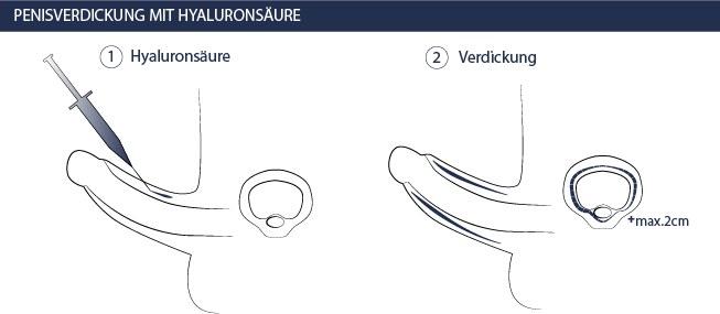 Penisvergrößerung / Penisverlängerung (Hyaluron, OP