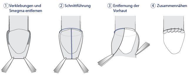 Ring Circumcision Pictures